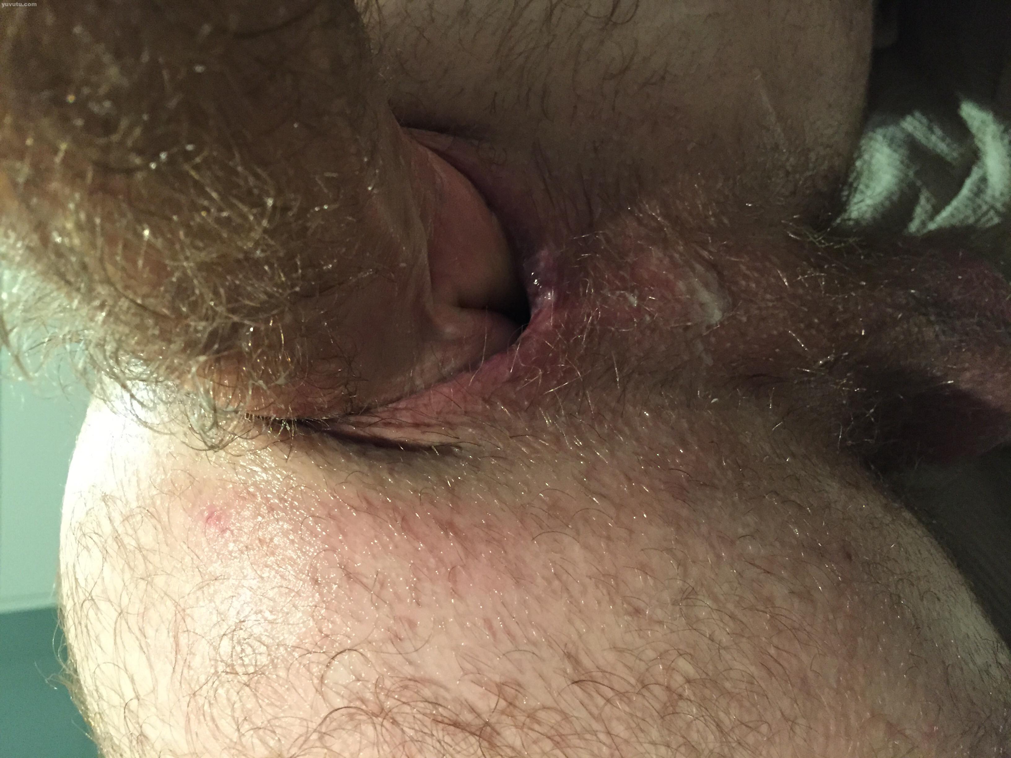 Yuvutu fisting anal