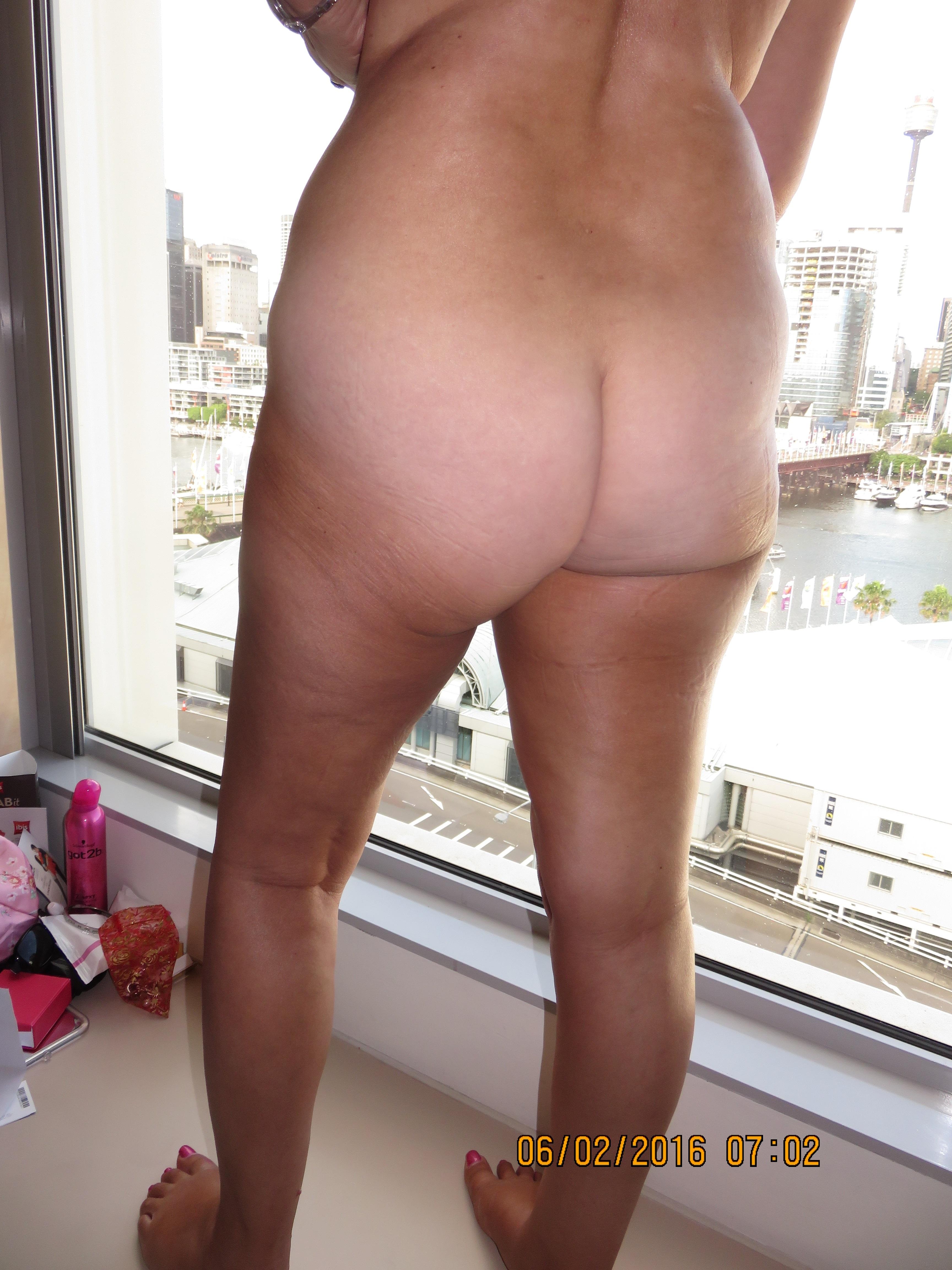 Window anal