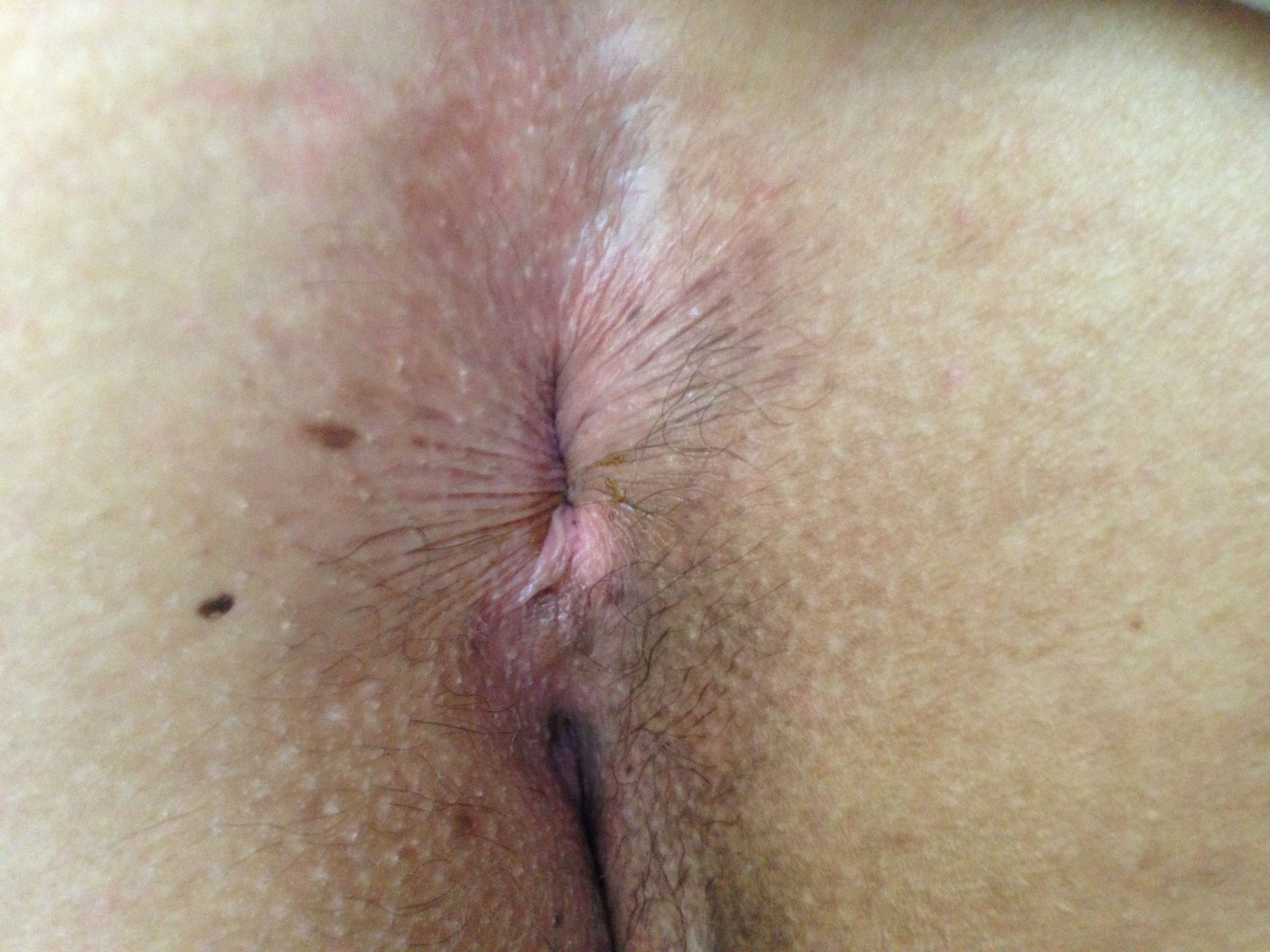 Butthole Closeup 26