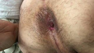 Anal - dove 2