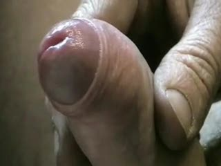 Foreskin so tight masturbation is impossible remarkable, this